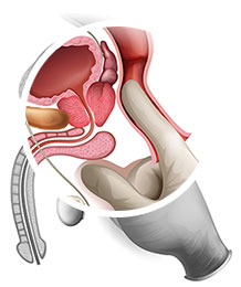 Slik finner du prostatakjertelen